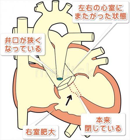 赤ちゃんの聴診でわかる病気は命にかかわる?!心音や雑音が聞こえなかったら・・・