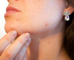 化膿ニキビ早く治す薬洗顔