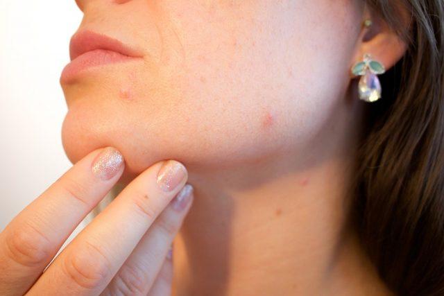 小林麻央の帯状疱疹はがんの影響?治療?原因や対策を探る