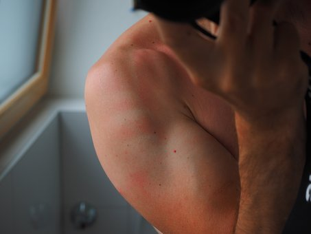日焼け後のケアで男の顔はどうする?必ずやるべき4つのこと